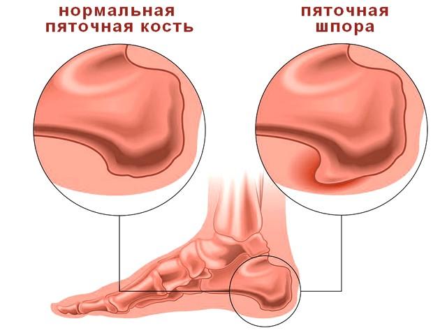 П'яткова шпора або шип: симптоми та лікування - Сайт медичної допомоги
